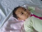 Bé gái 2 tháng tuổi nhập viện cấp cứu vì bị khỉ tấn công