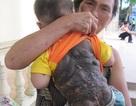 Mong manh sự sống cháu bé 2 tuổi bị u sắc tố da