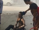 Vụ nổ bốt điện làm 1 người chết, 4 người bỏng: Dội nước lên nạn nhân có đúng cách?