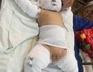 Bé trai 1 tháng tuổi bị người dượng thiêu sống đã tử vong