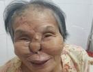Tạo hình toàn bộ mũi bị tế bào ung thư xâm lấn cho bà cụ 84 tuổi