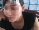 Tâm sự cay đắng của một phụ nữ nhan sắc bị người tình truy sát