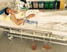 Phẫu thuật thành công cho bệnh nhân bị đứt đôi phế quản