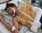 Vụ xe biển xanh gây tai nạn chết người: Thêm một nạn nhân nguy kịch