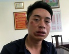 Hà Nội: Tạm giam nam thanh niên đấm gãy răng CSGT
