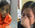 Vụ cô giáo đánh học sinh tím mặt vì viết sai chính tả lên báo nước ngoài
