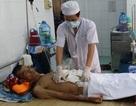 Cứu sống bệnh nhân bị phình động mạch chủ bụng có mạch, huyết áp bằng không