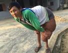 """Thương chàng thanh niên """"gánh"""" trên mình khối u nặng hơn 40kg"""