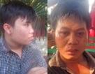 Vụ 2 phóng viên bị đánh, cướp: Giám định thương tích các nạn nhân