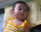 Trái tim bé 7 tháng tuổi có nguy cơ ngừng đập
