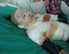 Xót thương một sĩ tử bị bỏng nặng trong ngày thi đại học
