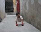"""Nụ cười trong trẻo của """"cô bé 3 chân"""""""
