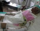 Các nạn nhân vụ cháy xưởng giày da ở Hải Phòng đang nguy kịch