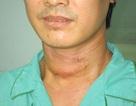 Cứu công nhân bị đồng nghiệp cắt cổ trước ngày cưới