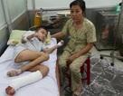 Bệnh nhân rụng dần chân tay mắc chứng bệnh cực hiếm