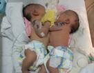 Thêm hai bé sơ sinh dính nhau, tim bẩm sinh phức tạp