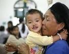 Hơn 2.000 trẻ nghèo bị sứt môi được phẫu thuật miễn phí