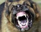 Bé 4 tuổi bị chó béc-giê cắn nát mặt
