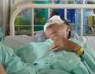 Vụ xe khách bị ném đá: Nạn nhân hỏng hoàn toàn mắt trái