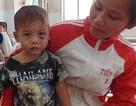 Bé trai ba tuổi bị cha dượng đánh dã man