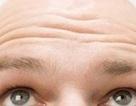 Tìm ra thủ phạm gây hói đầu ở nam giới