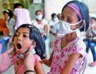 WHO: Tiềm ẩn đại dịch lao từ trẻ em