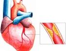 Phòng nhồi máu cơ tim do tăng cholesterol