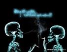 Nguy cơ ung thư tuỷ xương vì hút thuốc