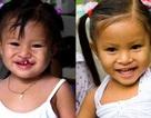 Tạo nụ cười ấm áp cho trẻ thơ