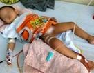 Chăm sóc đặc biệt bé bị cắt nhầm bàng quang