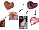 80% bệnh nhân viêm gan vi rút là nhóm B