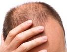 7 loại thực phẩm ngăn ngừa rụng tóc