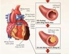 Rối loạn mỡ máu - sát thủ âm thầm gây nhồi máu cơ tim
