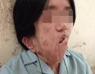 Cô gái mang khuôn mặt biến dạng gần 20 năm vì khối u xơ