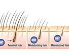 DHT: Thủ phạm của 80% trường hợp rụng tóc, hói đầu