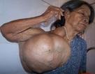 Phẫu thuật thành công khối u nặng 20kg ở vai