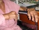 Lắng đọng tinh thể urat ở bệnh nhân gút