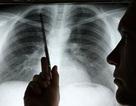 Điều trị ung thư phổi: Phương pháp nhắm trúng đích kết hợp xét nghiệm gen