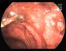 Một bệnh nhân bị chảy máu ruột nặng hiếm gặp