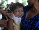 Một nửa số trẻ mắc sởi ở Singapore chưa được tiêm chủng