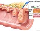 Ung thư đại trực tràng: Quan trọng là chẩn đoán sớm!