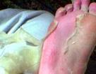 Phát hoảng với mặt nạ da chân gây tê buốt