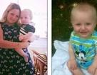 Hội chứng dị ứng đáng sợ ở bé 1 tuổi