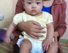 Cháu bé 3 ngày tuổi có nhịp tim chậm đã lớn nhanh, sức khỏe tốt