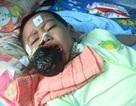 Quỹ Nhân ái hỗ trợ khẩn 5 triệu đồng đến bé Lê Minh Huy