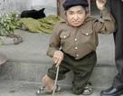 Chuyện về người lùn nhất Việt Nam