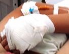 Đạp xe đi học, nữ sinh bị chém đứt gân tay