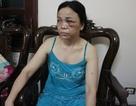 Hà Nội: Nữ sinh bị côn đồ truy sát tận nhà