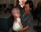 Bé 6 tháng tuổi bị não úng thủy không còn hy vọng chữa trị