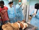 Yemen: Giao tranh ở Aden khiến gần 1.400 người thương vong